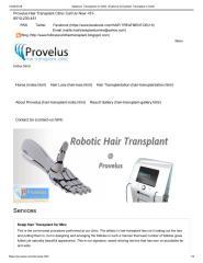 Sideburn Transplants in Delhi _ Eyebrow & Eyelash Transplant in Delhi.pdf